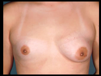 breast development